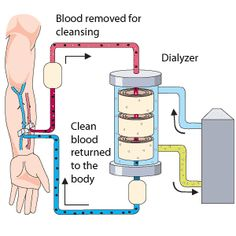Hemodialysis system chart: Depicts the dialyzer, blood removal for cleansing, and return of cleansed blood to the vasculature.