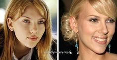 Scarlett Johansson before and after plastic surgery images Rhinoplasty - nose job, celeb plastic surgery. Celebrity Scarlett Johansson before and after plastic surgery images Rhinoplasty - nose job, celeb plastic surgery. Nose Plastic Surgery, Plastic Surgery Pictures, Bad Plastic Surgeries, Plastic Surgery Gone Wrong, Celebrity Plastic Surgery, Scarlett Johansson, Celebs Without Makeup, Rhinoplasty Surgery, Celebrities Before And After