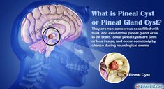 What is a Pineal Cyst or Pineal Gland Cyst in the Brain? Intracranial Pressure, Sciatic Pain, Surgical Tech, Pineal Gland, Brain Tumor, Signs And Symptoms, Invisible Illness, Healing Herbs, Heartburn