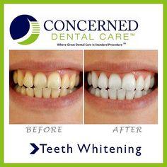 #beforeandafter #teethwhitening #smile #dentist #perfectsmile