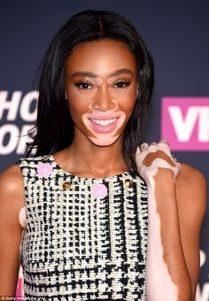 5f44e6d4a12 8 Best Winnie Harlow for GQ Portugal by Branislav Simoncik images ...