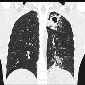 Tuberculosis (pulmonary manifestations)   Radiology Reference Article   Radiopaedia.org