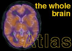 The Whole Brain Atlas...from Harvard