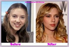 scarlett johansons nose jobs before and after 300x204 Steve Martin and Nose jobs before and after