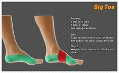 Kinesiology taping instructions the big toe Message Therapy, K Tape, Foot Exercises, Ligament Injury, Kinesiology Taping, Sprained Ankle, Heath And Fitness, Athletic Training, Sports Medicine
