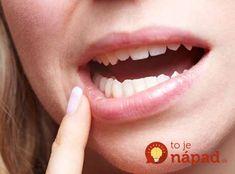 Zabudnite na plomby a boľavé ďasná: Najsilnejší liek na regeneráciu zubov máte priamo pod nosom! Funguje To, Deodorant, Detox, Anna, Turmeric