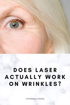 As the body ages, so does the skin. Collagen, that kept it firm and youthful, is produced in lower quantities. That is when wrinkles appear. Some patients, men and women alike, may want to reduce the appearance of skin aging or make it go altogether. Infinity Laser Spa, Beauty Spa, Laser Hair Removal, Collagen, Stuff To Do, Skin Care, Women, Collages, Skincare Routine