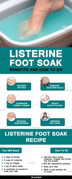 Listerine Foot Soak Benefits #footspanatural