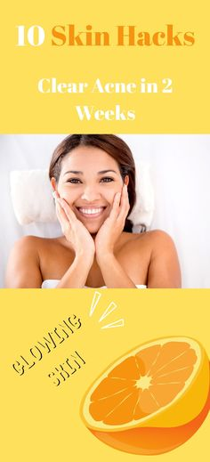Are you looking how to get clear skin fast? This post will go over the top proven hacks and tips to get clear skin in 2 weeks. Pimple Marks, Acne And Pimples, Acne Marks, Acne Skin, How To Clear Pimples, How To Get Rid Of Pimples, Clear Skin Fast, Clear Skin Tips, Clear Skin Routine