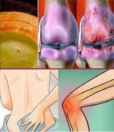 The knees are one of the body parts that is subjected to a lot of wear and tear over time. They support our weight and [...]