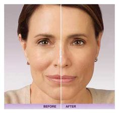 Beautiful Juvederm results.