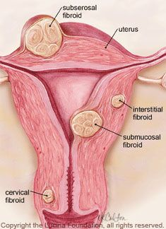 Fibroids are benign muscle tumors that can grow in a woman's uterus. They are present in up to of reproductive age women. If you have questions, South Jersey Fertility Center can help. Fibroid Uterus, Uterine Fibroids, Causes Of Infertility, Infertility Treatment, Medical Laboratory Science, Science Student, Fibroid Surgery, Gym Images, Pregnancy Help