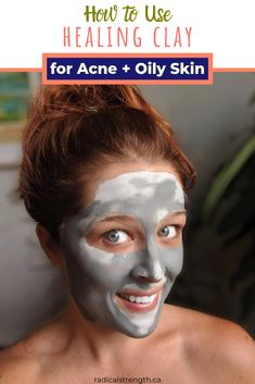 Try this DIY clay mask for acne. Learn all about bentonite Aztec Indian clay, rhassoul Moroccon clay, kaolin clay and french green clay. This clay mask recipe will leave your skin feeling refreshed and clean. Add acne and oily skin friendly oils and essential oil to boost healing properties. Charcoal clay mask will boost the cleansing properties for oily skin. #claymask #acne #skincareroutine #healingclay #indianclay #greenclay #aztecclay #diyfacemask #claymaskforoilyskin #oilyskin
