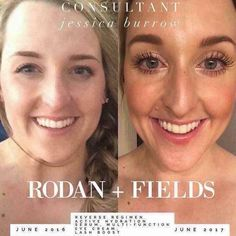 Get longer, thicker, and darker lashes with Rodan and Fields Lash Boost. This product was produced to help you get your dream lashes! Rodan And Fields Reverse, My Rodan And Fields, Rodan And Fields Regimen, Roden And Fields, Natural Eyelashes, Skin Care Regimen, Good Skin, Serum, Skincare