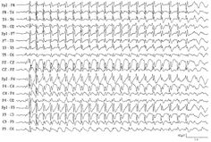An electroencephalogram (EEG) is a test that measures and