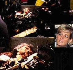 Autopsy Celebrity Death Photos | Wow that looks awful that doesn't even look like Diana such a bad way ...