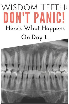Wisdom Teeth: Don't Panic! Here's What Happens On Day 1 | www.thegingermarieblog.com