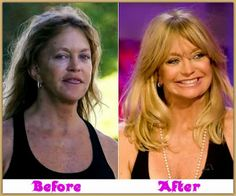 Goldie Hawn plastic surgery seems natural as she doesn't around utilize the therapy. Moreover, Goldie Hawn maintained that she has great genes to keep her attractiveness