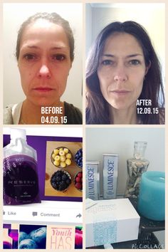 After 10 days!! So happy with my new skincare range that I decided to join the business.