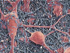 Neurons tangled in a sea of glia. Colored SEM - Credit: Thomas Deerinck.