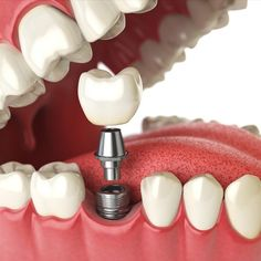 Schedule an appointment for dental implants in Calgary. Sunridge Landing Dental Clinic offers dental teeth implants near you with our nearby dentist. Best Dental Implants, Affordable Dental Implants, Teeth Implants, Implant Dentistry, Cosmetic Dentistry, Rheumatische Arthritis, Family Dental Care, Teeth Whitening Remedies, Dental Bridge