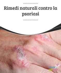 Natural Remedies for Psoriasis.What is Psoriasis? Causes and Some Natural Remedies For Psoriasis.Natural Remedies for Psoriasis - All You Need to Know What Is Psoriasis, Psoriasis On Face, Psoriasis Arthritis, Psoriasis Diet, Plaque Psoriasis, Psoriasis Remedies, Rosacea, Doterra, Aloe Vera