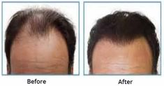 Hair Transplant offers you the Hair loss treatment in Delhi, with permanent and natural looking results