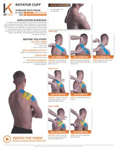 Rotator cuff: KT Tape can help treat this condition by providing support and stability, relieving pressure to reduce pain, and increasing circulation