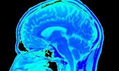New Drug for Brain Injury Victims being studied - San Jose Brain Injury Attorney