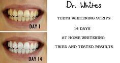 Best teeth whitening strips buy teeth whitening,professional teeth whitening gel quick teeth whitening,teeth whitening online teeth whitening products that work. Results Day, White Teeth, Teeth Whitening, Products, Beauty Products