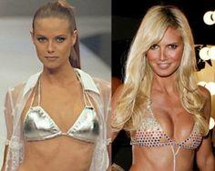 Victoria's Secret model Heidi Klum before & after breast implants