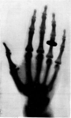 1st radiograph taken on December 22nd 1895 by Wilhelm Rontgen of his wife, Anna, her hand