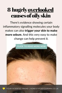 Your skin feels like an oil slick by midday? Heck sometimes even an hour after applying makeup? I get this first hand. And these oily skin hacks are science proven. Click my pin to get started with them now. #oilyskin #oilyskincare #honestyforyourskin Oily Skin Remedy, Oily Skin Care, Acne Prone Skin, Applying Makeup, How To Apply Makeup, All Natural Skin Care, Natural Beauty, Acne Help, Acne Solutions