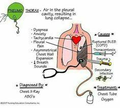 #Pneumothorax #Nursing
