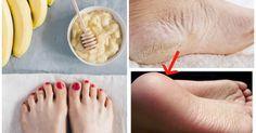 Se siete stanchi di avere i piedi con i talloni rugosi e secchi, provate questi 3 rimedi e finalmente avrete talloni morbidissimi