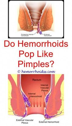 How to get rid of hemorrhoids permanently without surgery? can hemorrhoids itch and burn?,how to get rid of external hemorrhoids home remedies? can external hemorrhoids last for years?,why do my hemorrhoids bleed so much? how doctors treat hemorrhoids? Warts On Hands, Warts On Face, Get Rid Of Warts, Remove Warts, Hemorrhoid Relief, Getting Rid Of Hemorrhoids