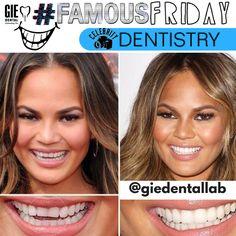 - Care - Skin care , beauty ideas and skin care tips Veneers Teeth, Dental Veneers, Perfect Teeth, Perfect Smile, Celebrity Teeth, Composite Veneers, Teeth Shape, Thin Lips, Teeth Bleaching