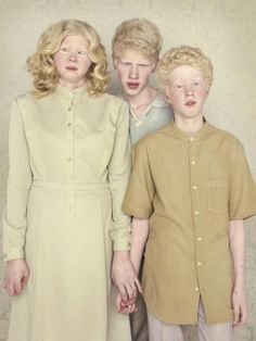 Stunning Portraits of Albinos by Gustavo Lacerda  As part of our ongoing partnership with Feature Shoot, Beautiful/Decay is sharing Alison Zavos' article on Photographer Gustavo Lacerda.  It's a common myth that all albinos have red eyes, a myth easily dispelled by these stunning portraits by Gustavo Lacerda. Since 2009 Lacerda, a