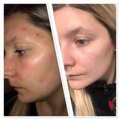 Lumispa results 😍 Anti Aging Facial, Anti Aging Skin Care, New Skin, Beauty Bar, How To Better Yourself, Collagen, Makeup, Opportunity, Skincare