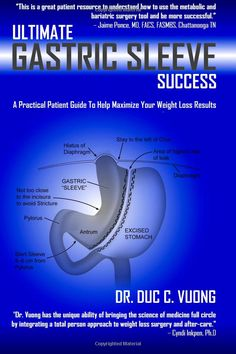 Ultimate Gastric Sleeve Success: A Practical Patient Guide To Help Maximize Your Weight Loss Results: Dr. Duc C. Vuong:  This isn't a book that's full of medical terms and things you can't understand. It's interactive, its easy to read, and an amazing guide in fully understanding everything the gastric sleeve entails. This is something everyone should own- whether you're just considering surgery, have your surgery scheduled, or have had it!