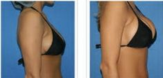 Do breast enhancement supplements really work? enhance breast enlargement naturally,naturaful breast enlargement cream екгер neonatal breast enlargement treatment,saw palmetto breast enlargement breast transplant cost. Health Trends, Body Love, Workout, Boobs, Health And Beauty, Breast, Women's Health, Black, Enlargement Pills
