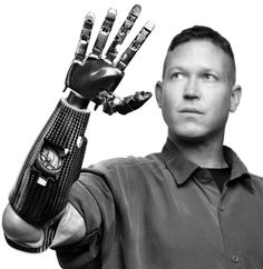 Darpa's prosthetic arm gives amputees new hope