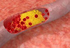 Očistite se od lošeg holesterola takvom brzinom da će vaš ljekar biti iznenađen!   Novi.ba