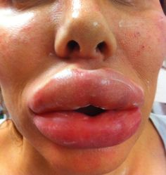 When fillers go wrong.