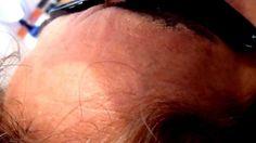 Retirada de maquiagem definitiva a laser na sombrancelha em Porto Alegre...