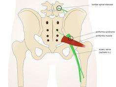 Das Piriformis Syndrom: Starke Schmerzen in Gesäß, Beinen und Rücken