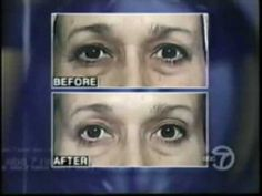 http://www.thermagefaceliftnyc.org (212)-644-9494  Thermage      You no longer recognize the face looking back at you in the mirror, it's time to learn how Thermage can help you look as young as you feel.  Thermage® is a safe, non-invasive, no downtime, single treatment, cosmetic procedure that is clinically proven to tighten, contour and rejuvenate facial skin to help naturally restore a more youthful appearance.