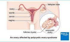 Polycystic Ovarian Syndrome (PCOS)-A Leading Cause of Female Infertility Symptoms Of Polycystic Ovaries, Polycystic Ovary Syndrome Pcos, Pcos Symptoms, Causes Of Female Infertility, Pcos Infertility, Sleep Apnoea, Medical Advice, Women's Health, Surgery