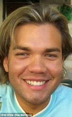 Ken Humano gastou mais de 1 milhão de reais em cirurgias plásticas e teve nariz rejeitado pelo corpo