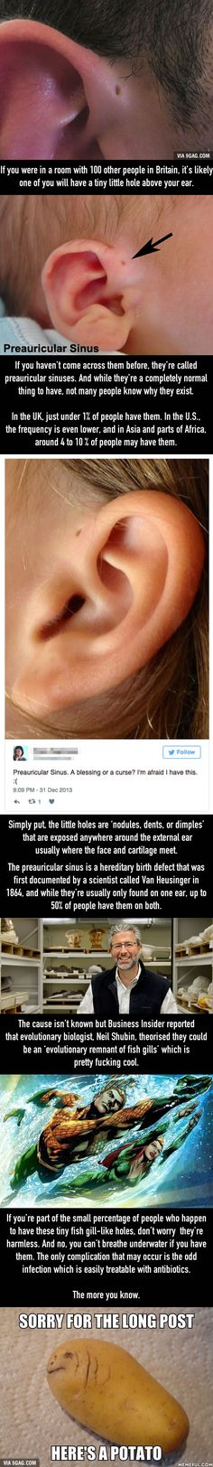 This Is Why Some People Have Those Little Holes Above Their Ears - 9GAG